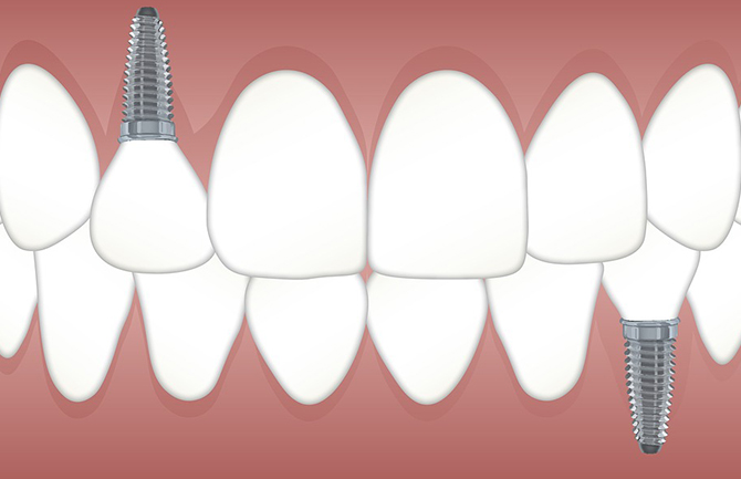 牙齿种植过程有哪些